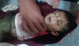 الطفل يوسف عثمان - عفرين شمال حلب