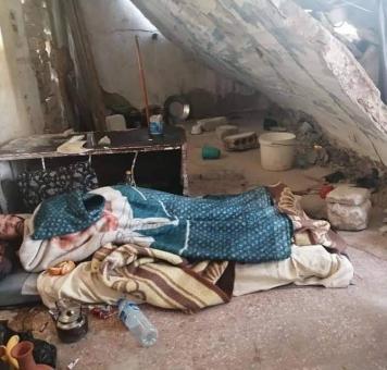 سوري يأكل الدود جراحه في إدلب